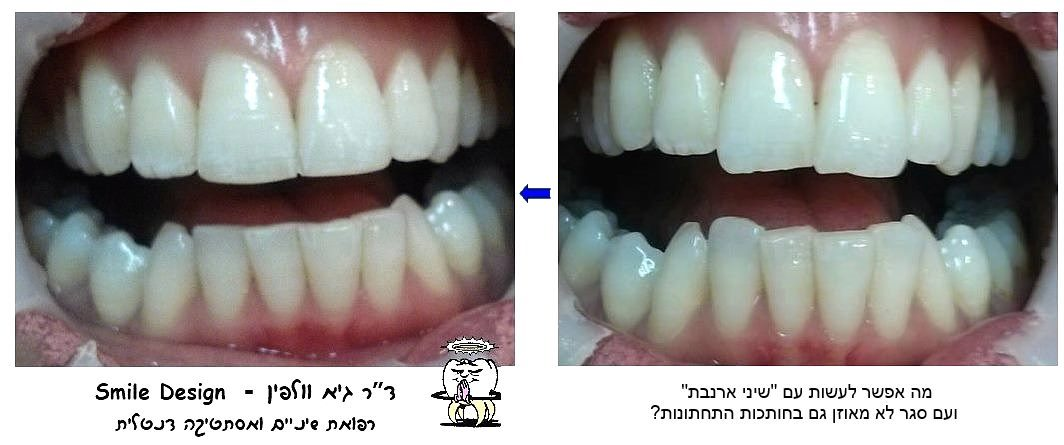 smile.design.volfin.שיני ארנבת, עיצוב החיוך, smile design,  guy volfin גיא וולפין